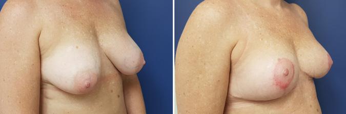 Breast Reduction Durban