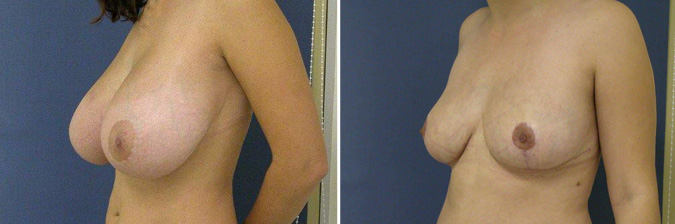 Breast Reduction Surgeon