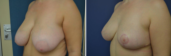 Wise Pattern Breast Reduction