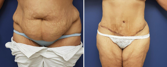 Tummy tuck Before After Photos