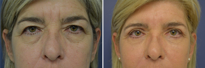 Upper Eyelid Rejuvenation Durban
