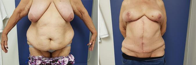 Fleur-de-Lis Abdominoplasty