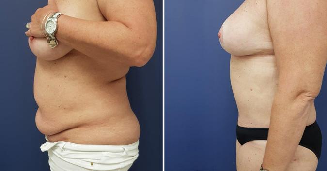 Abdominoplasty Plastic Surgeon