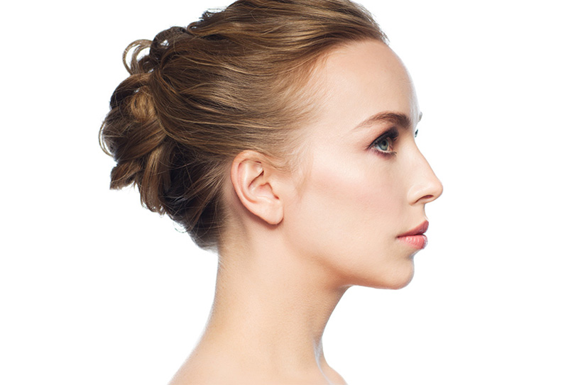 cosmetic nose lift surgery
